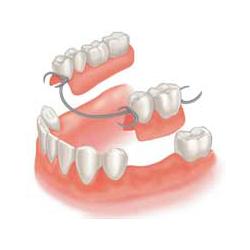 protezirovanie-zubov-osnovnoe
